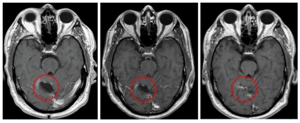 MRI scans from the trial show changes to tumor sites in the brain.