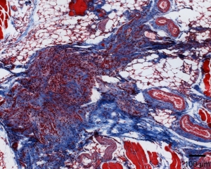 Staining shows collagen deposit, in blue, within a residual breast tumor following Her2 inhibition. CREDIT: Duke Health
